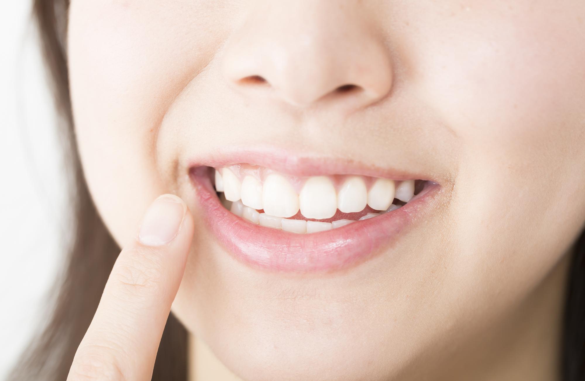 歯周病/虫歯治療&予防